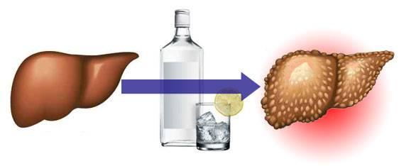Профилактика лечения печени при алкоголизме