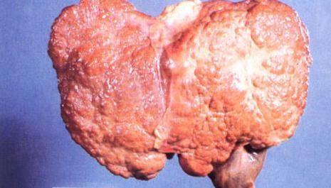 острый гепатит с симптомы