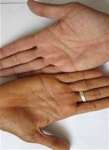 Какие заболевания могут провоцировать пожелтение кожных покровов