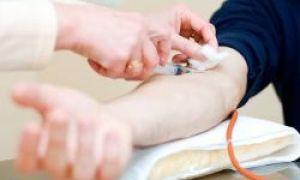 Гепатит симптомы у женщин