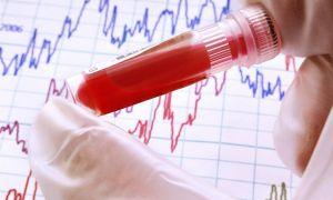 Повышен прямой билирубин в крови причины