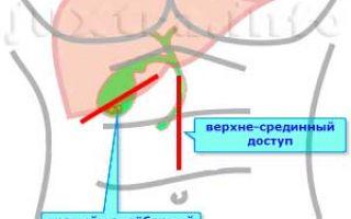 Операция по удалению желчного