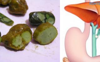 Чем растворить камни в желчном пузыре