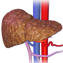 Печень, пораженная циррозом