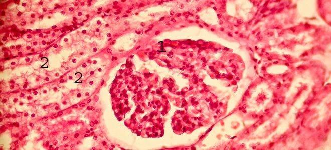 Лечение механической желтухи при раке печени — Сам себе Доктор