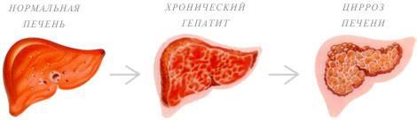 хронический персистирующий гепатит профилактика