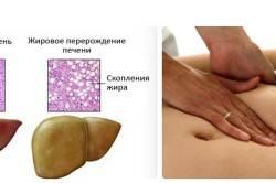 Схема жирового гепатоза печени