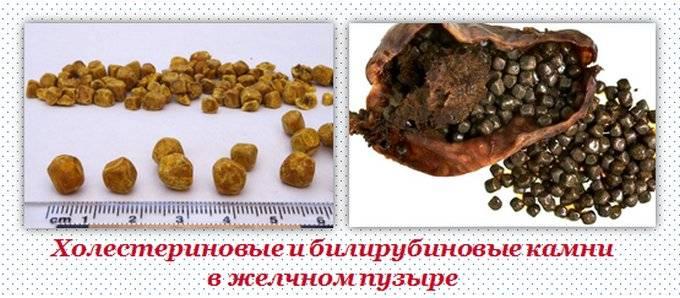watermarked-cholesterin_bilirubin_kamni_gelchnogo_puzurya