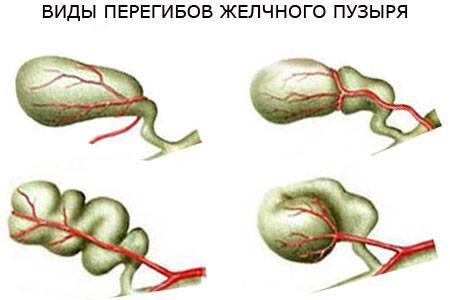 виды и симптомы перегиба желчного пузыря