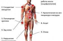 Симптомы алкогольного цирроза