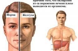 Схема проявления желтухи при циррозе печени