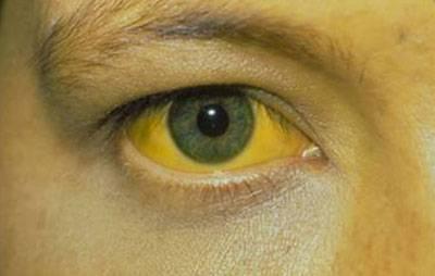 Глаз больного гепатитом