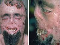 Случаи вампиризма или болезнь порфирия