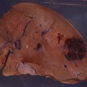 Причины образования гемангиомы в печени