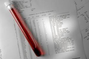 Пробирка с кровью и лист с результатами