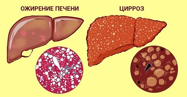 Заболевания печени у человека
