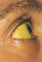 Желтушность склер гепатита нет
