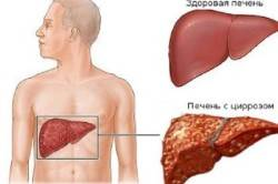 Сравнение здоровой печени и цирроза