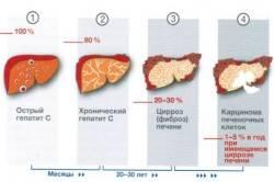 Стадии гепатита