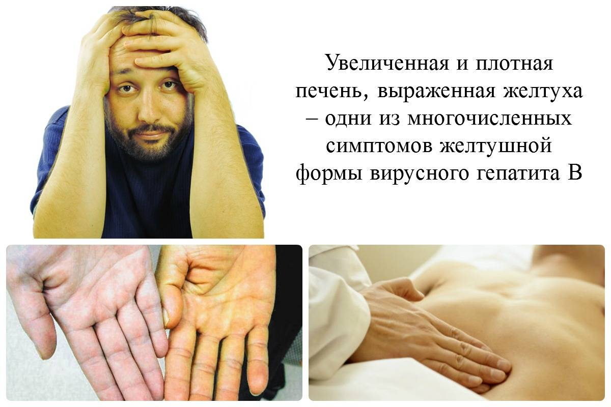 Воспаление при остром гепатите