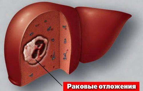 раковые клетки в печени