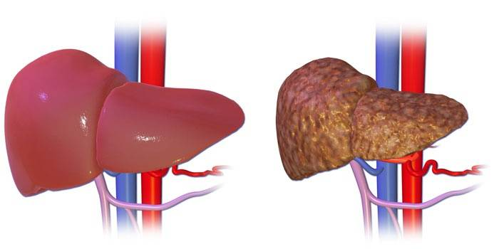 Здоровая печень (слева) и печень с циррозом