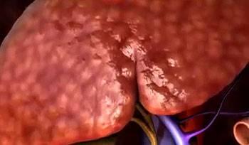 печень с рубцовой тканью цирроза