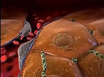 остановка кровотока при циррозе печени