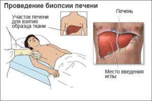 Биохимия печени при циррозе