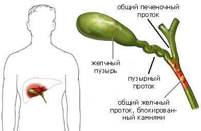 Лечение желчного пузыря лекарствами2