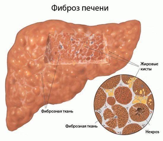 Фиброз печени - лечение