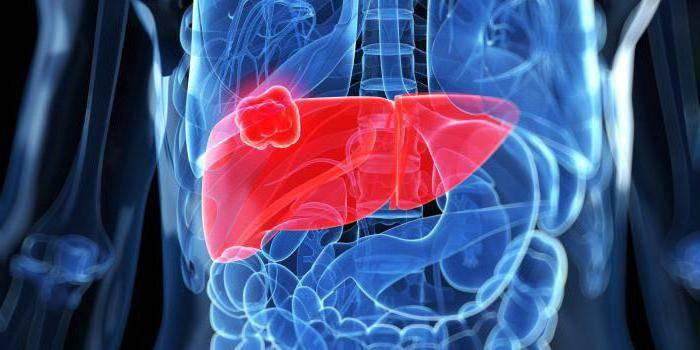 метастазы в печени лечение отзывы