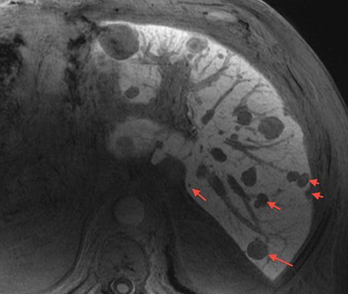 метастазы печени рак поджелудочной лечение