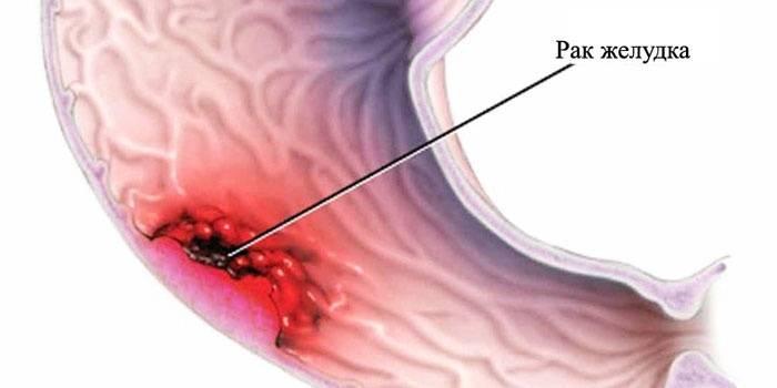 Как выглядит раковая опухоль желудка