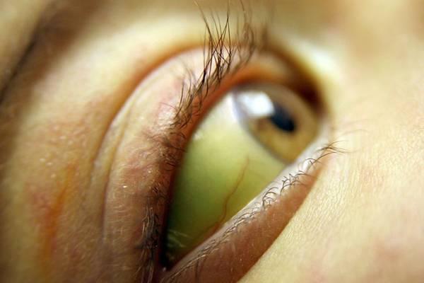 Желтуха, желтые белки глаз