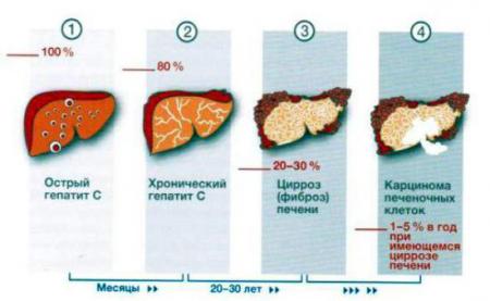 Стадии развития гепатита С