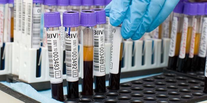 Пробирки с анализами крови