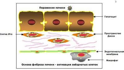 Фиброз печени и анатомические особенности