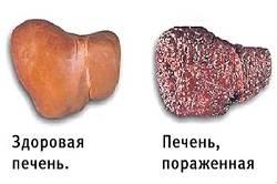 Здоровая и пораженная печень