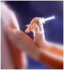 Гепатит б вирусный