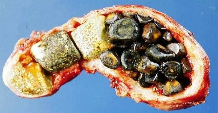 Причины камней в желчном пузыре