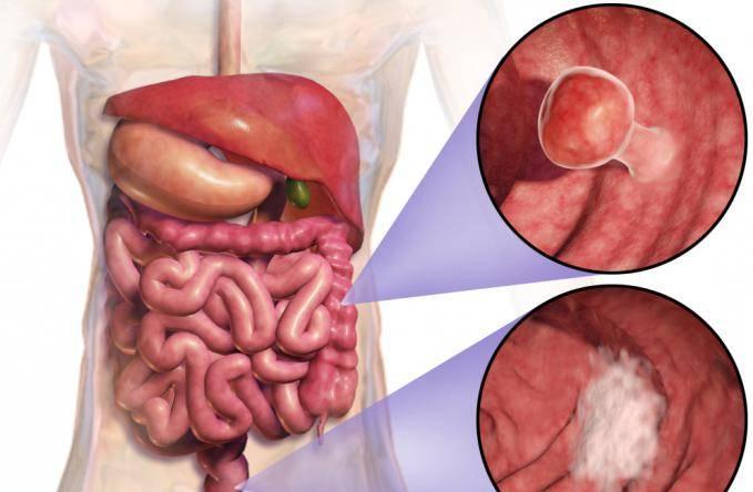 Рак кишечника сколько живут