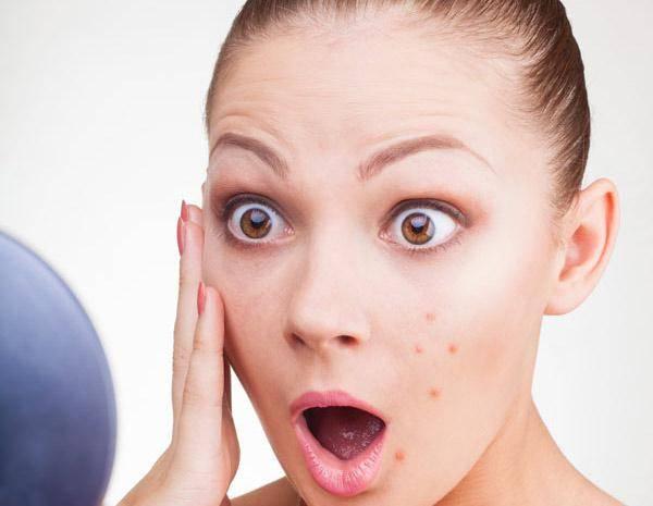 кожа при заболеваниях печени