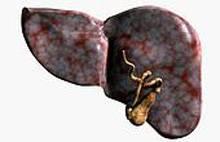 При гепатите развивается желтуха механическая