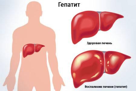 Гепатит и печень