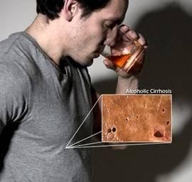 Признаки алкогольного гепатита