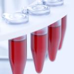анализ на трансаминазы