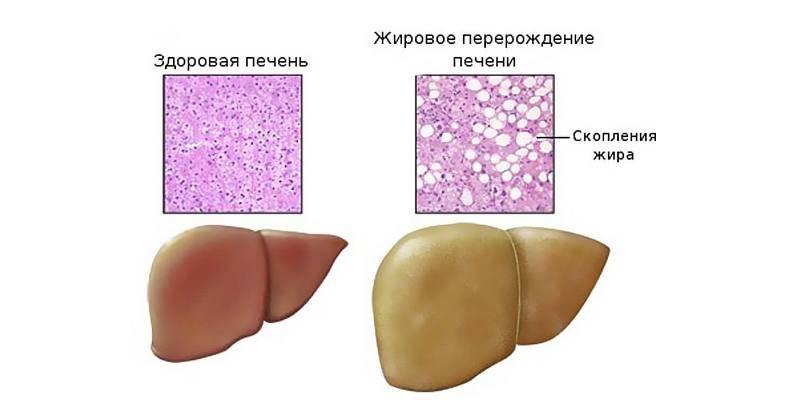 Жировой стеатоз