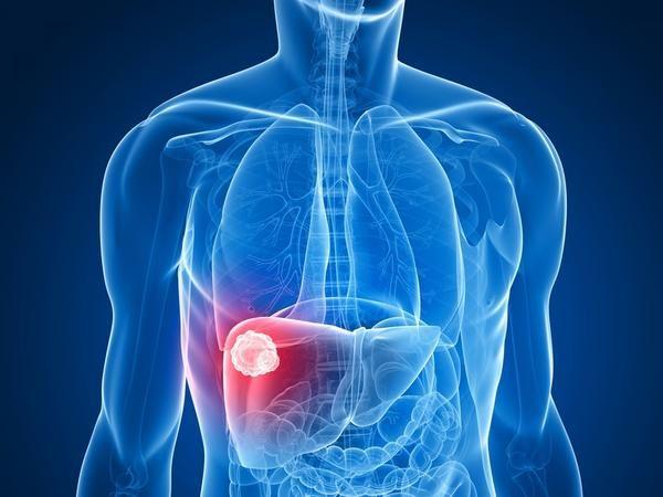 Каверномы - это сосудистые опухоли из кровеносных капилляров
