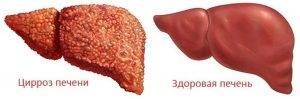 Чем лечить алкогольный цирроз печени